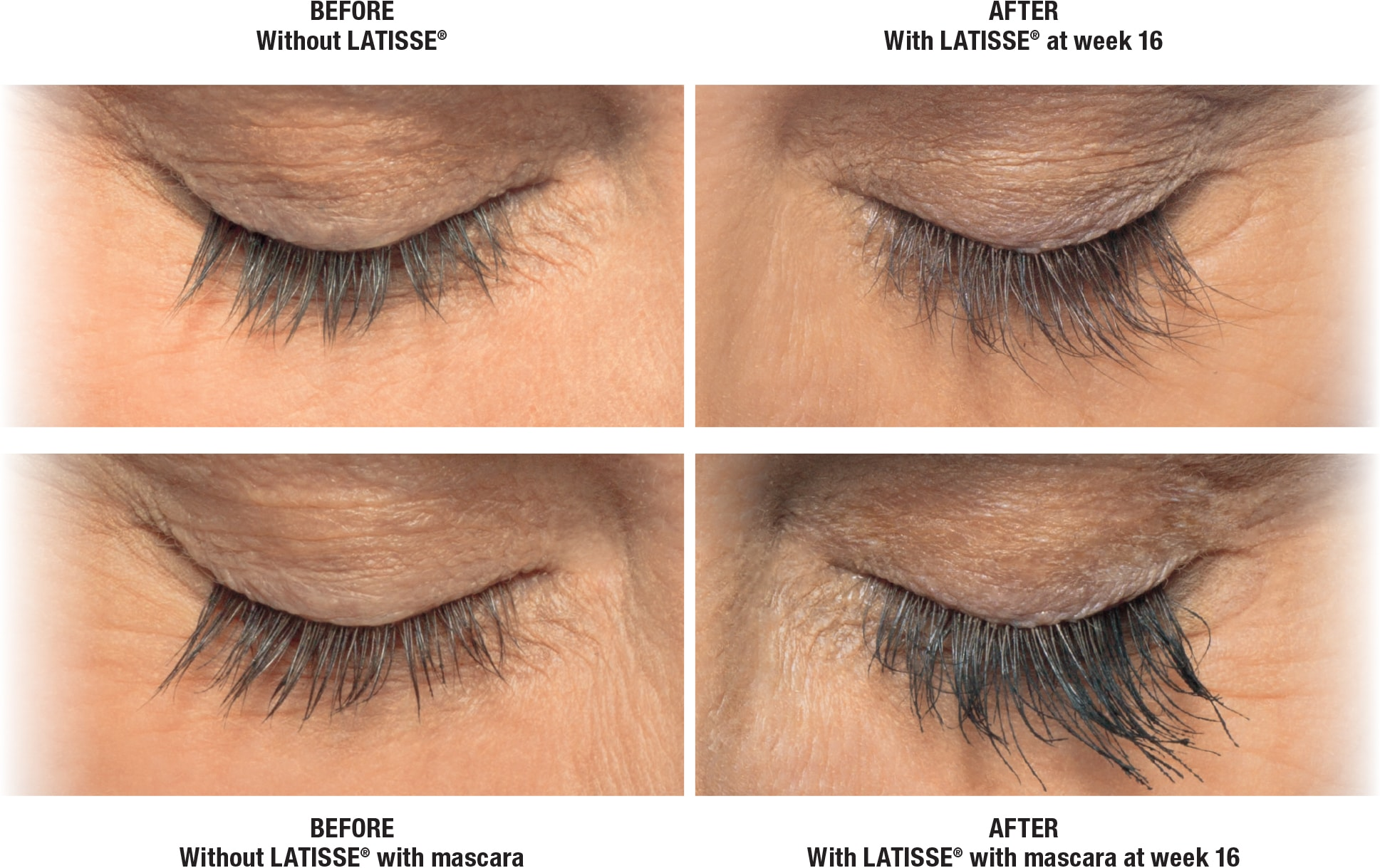 Image of Victoria before and after using Latisse