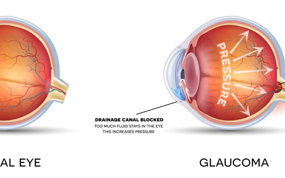 What kinds of glaucoma are there?