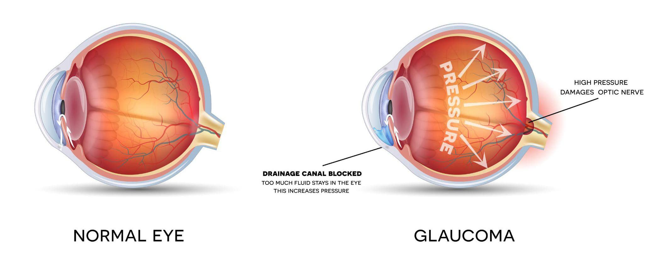 image showing the difference between a normal eye and an eye with glaucoma